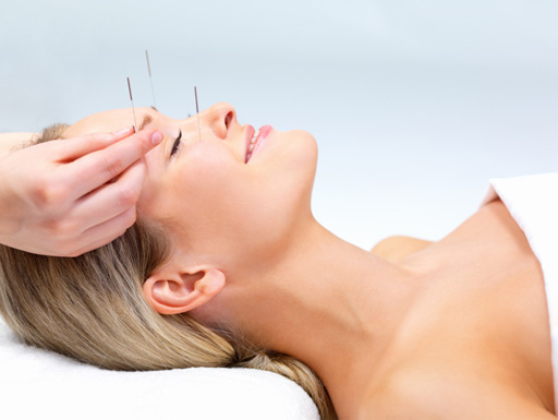acupuncture in phuket Acupuncture